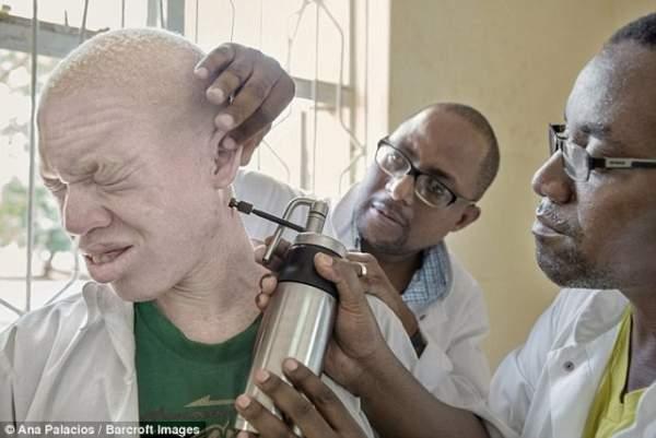 Thuê sát thủ giết người bạch tạng để chế thuốc ở Malawi 3