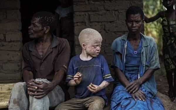 Thuê sát thủ giết người bạch tạng để chế thuốc ở Malawi 1