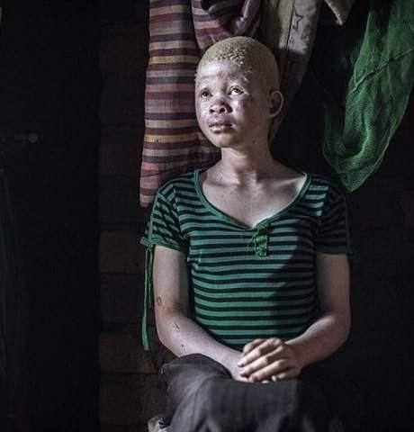 Thuê sát thủ giết người bạch tạng để chế thuốc ở Malawi 2