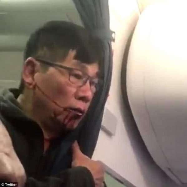 Bác sĩ gốc Việt bị kéo lê khỏi máy bay Mỹ: Dư luận phẫn nộ 1
