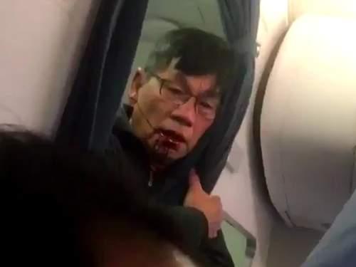 Bác sĩ gốc Việt bị kéo lê: Vỡ mũi, gãy 2 răng cửa 2