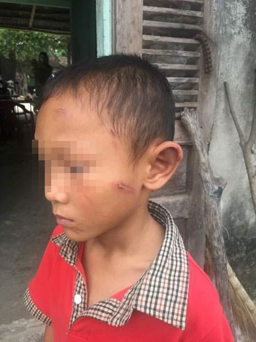 Bé trai 5 tuổi bị dì ruột bạo hành dã man 1