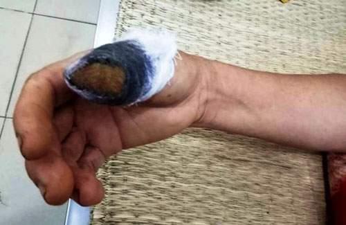 Nóng trong ngày: Rùng mình cắn lìa ngón tay hàng xóm vì nắm mùng tơi 1