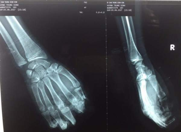 Bỏ quên 4 ngón tay đứt lìa trong xưởng cưa 1