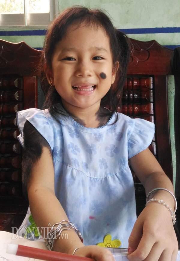 """Bé gái 5 tuổi mọc lông đầy mình ở Cà Mau: """"Con ngứa và đau lắm"""" 4"""