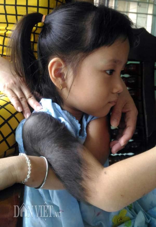 """Bé gái 5 tuổi mọc lông đầy mình ở Cà Mau: """"Con ngứa và đau lắm"""" 3"""